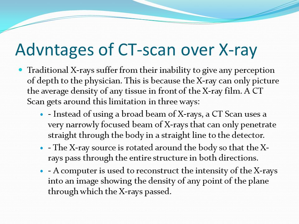Advntages of CT-scan over X-ray