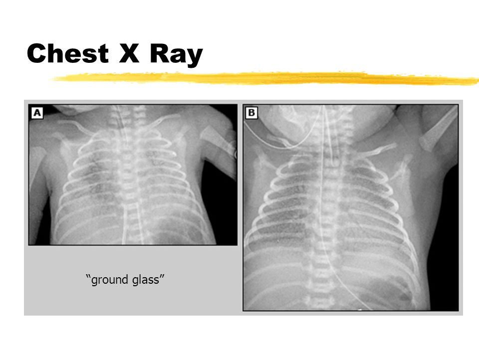 Chest X Ray ground glass