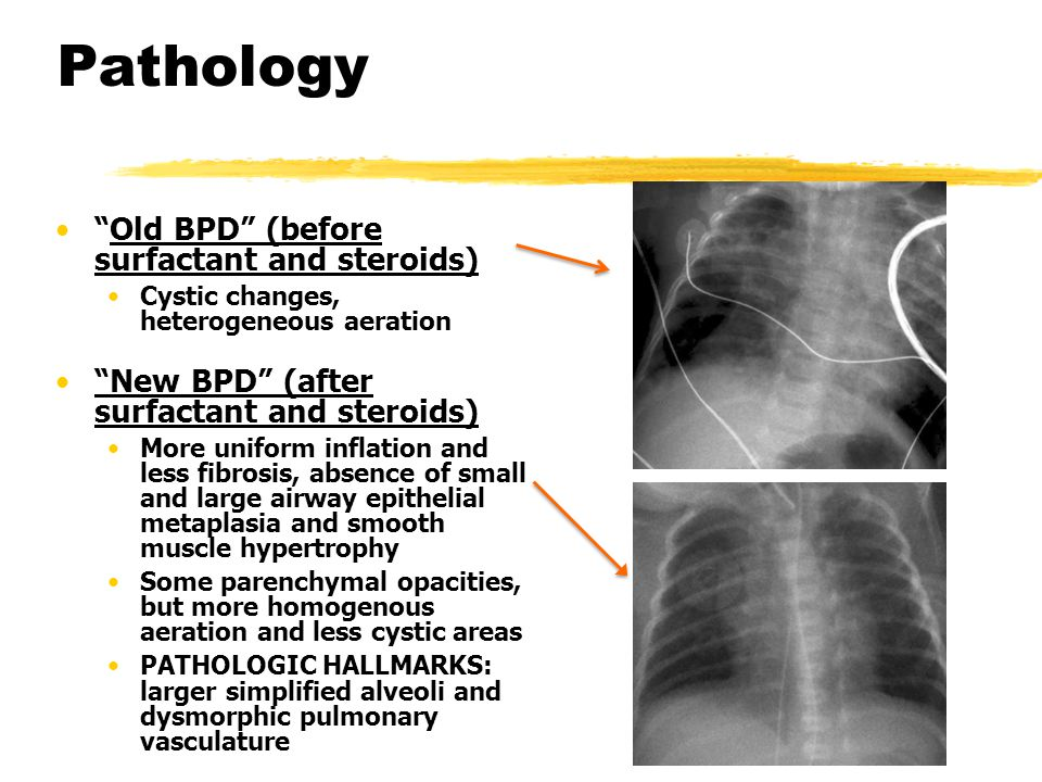 Pathology Old BPD (before surfactant and steroids)