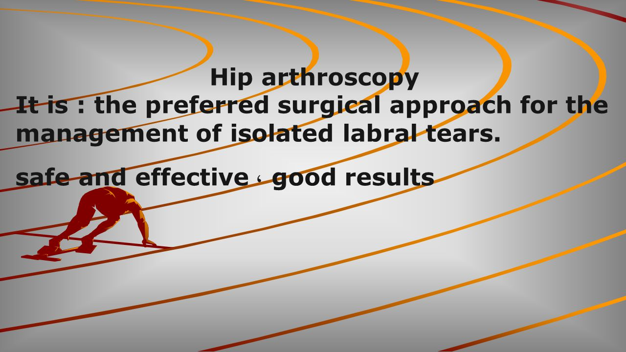 Hip arthroscopy It is : the preferred surgical approach for the management of isolated labral tears.