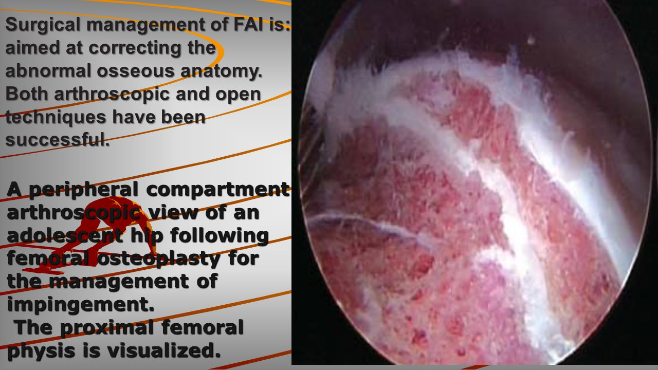 Surgical management of FAI is:
