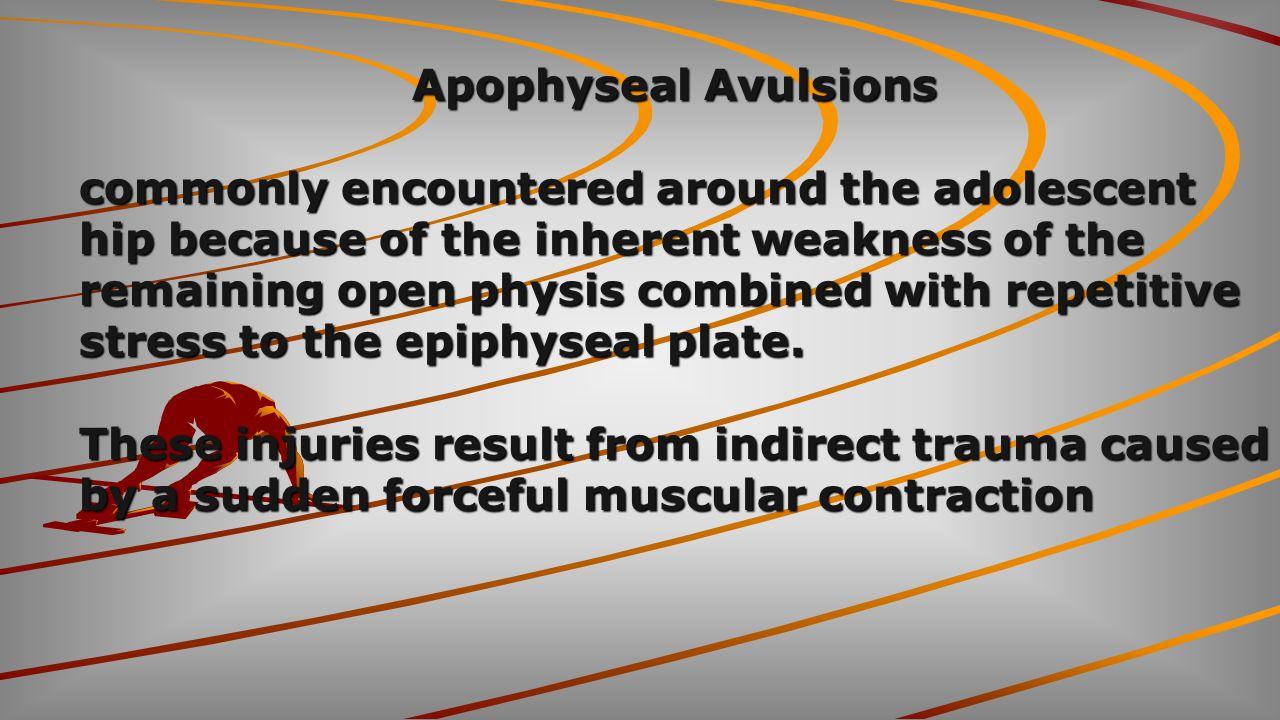 Apophyseal Avulsions