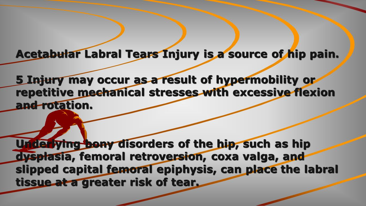 Acetabular Labral Tears Injury is a source of hip pain.