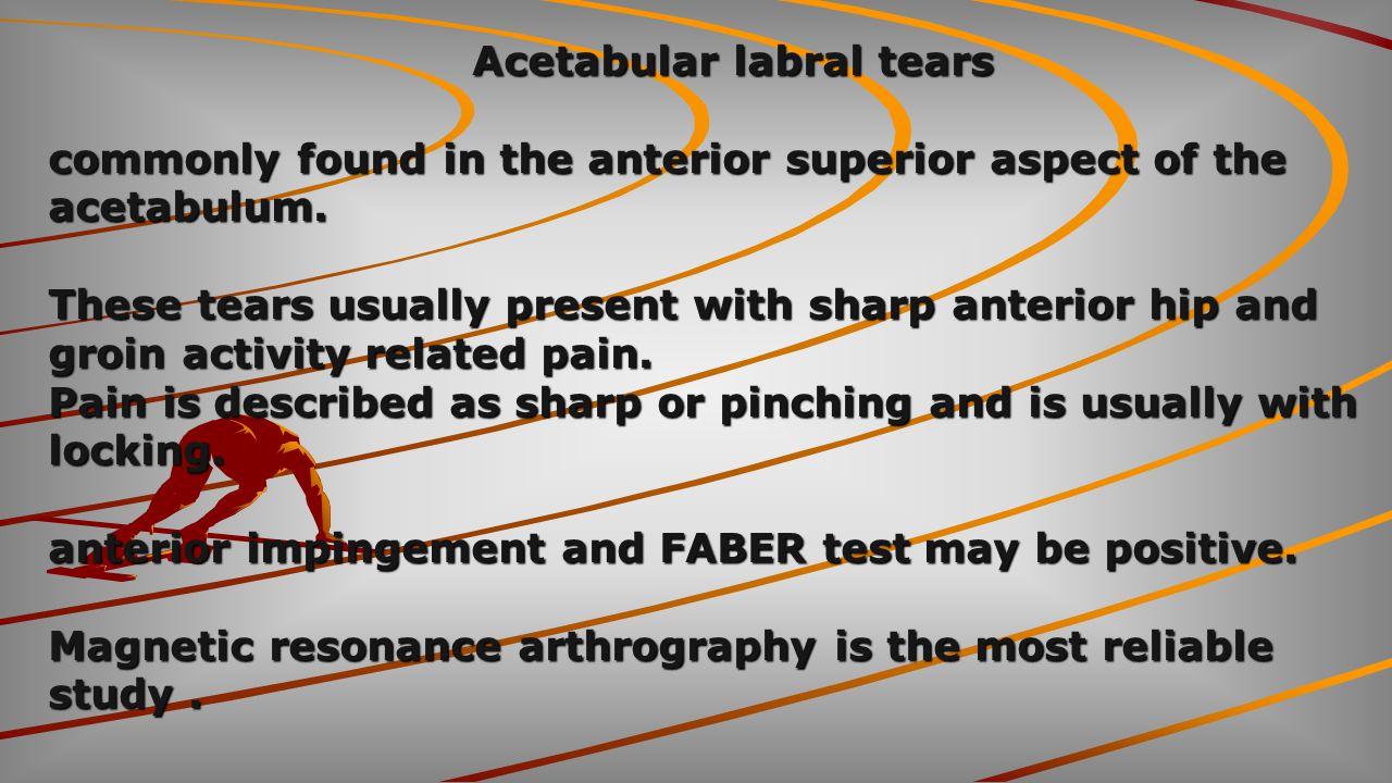 Acetabular labral tears