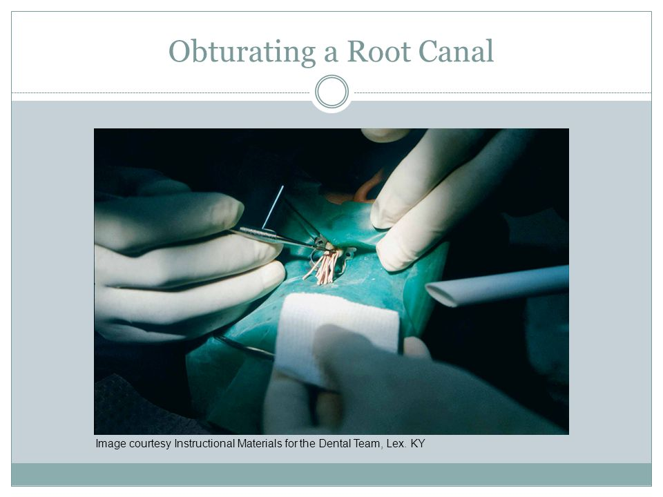 Obturating a Root Canal