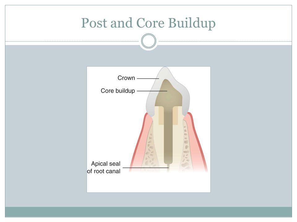Post and Core Buildup