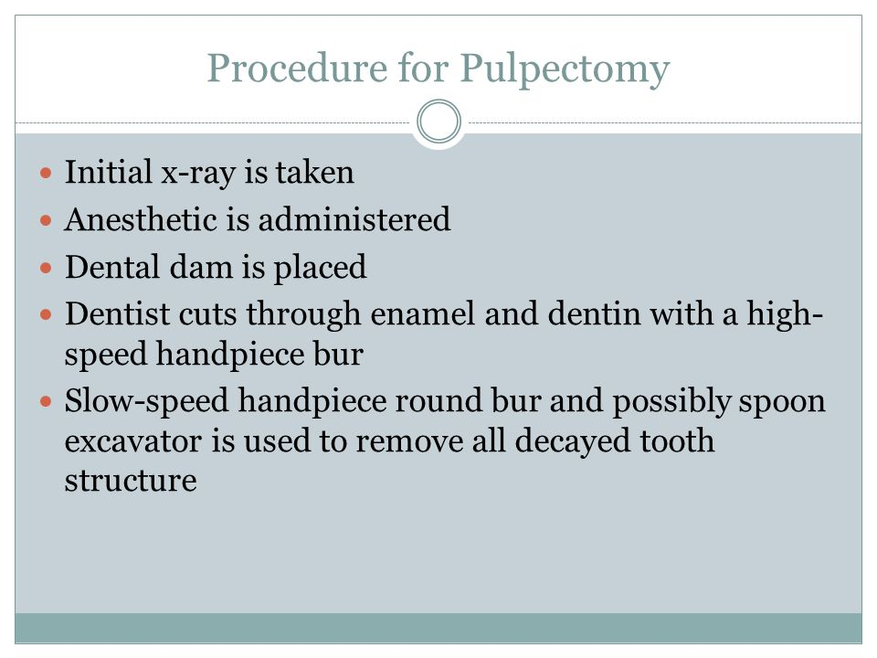 Procedure for Pulpectomy