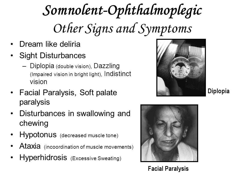 Somnolent-Ophthalmoplegic Other Signs and Symptoms