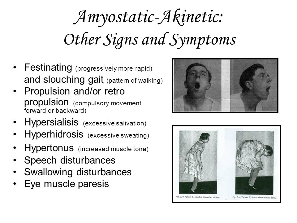 Amyostatic-Akinetic: Other Signs and Symptoms