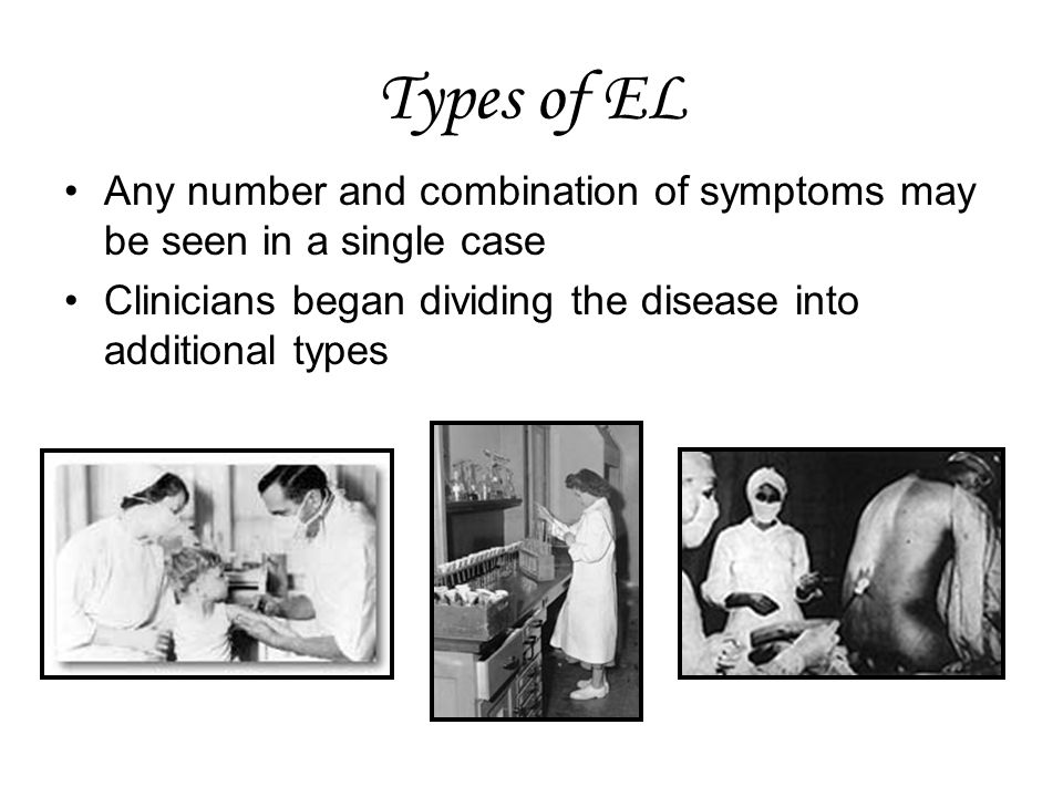 Types of EL Any number and combination of symptoms may be seen in a single case.