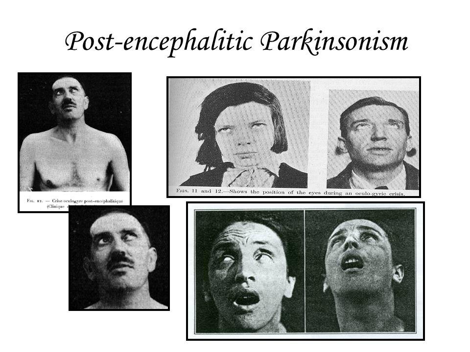 Post-encephalitic Parkinsonism
