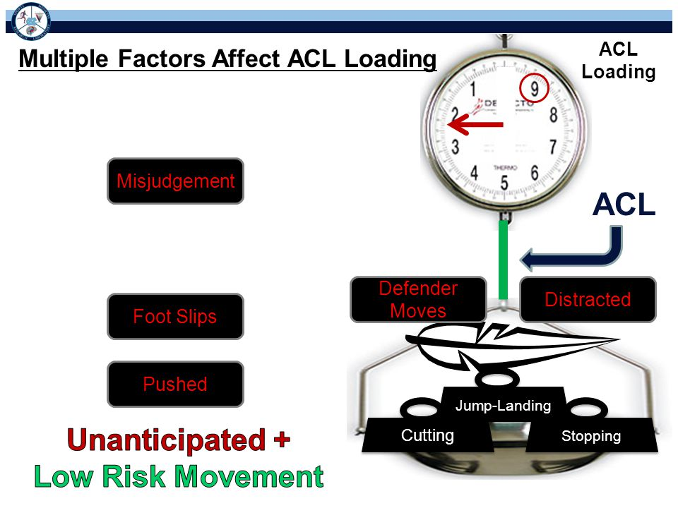 ACL Unanticipated + Low Risk Movement