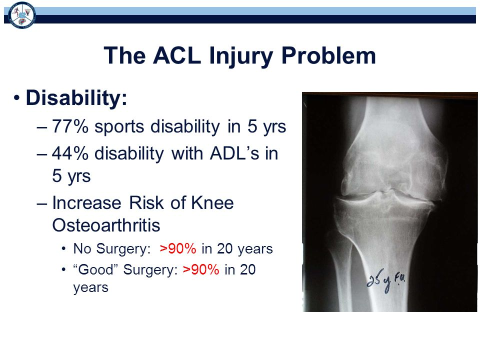 The ACL Injury Problem Disability: 77% sports disability in 5 yrs