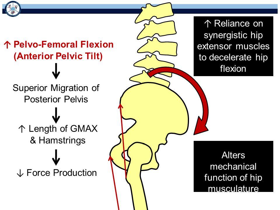 ↑ Pelvo-Femoral Flexion (Anterior Pelvic Tilt)