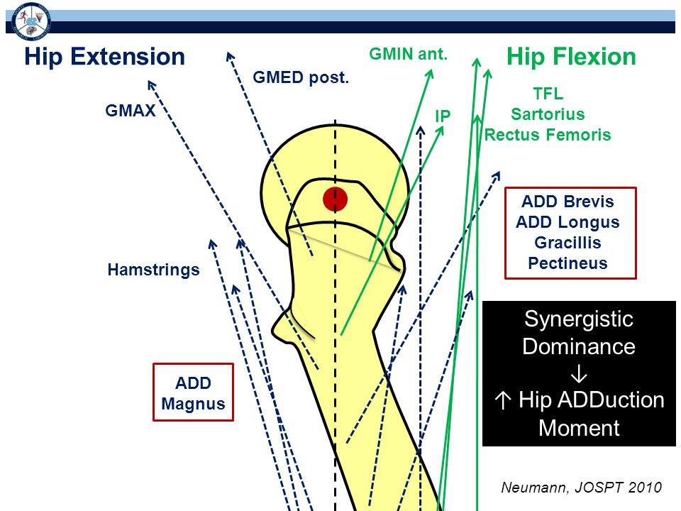Hip Extension Hip Flexion Synergistic Dominance ↓ ↑ Hip ADDuction