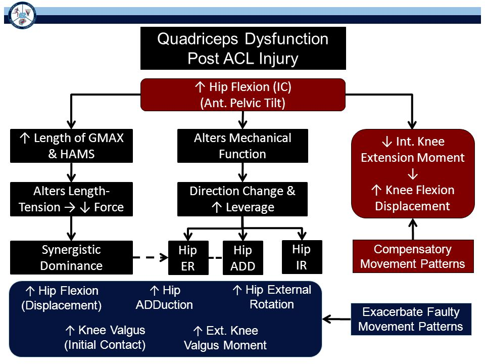 Quadriceps Dysfunction Post ACL Injury