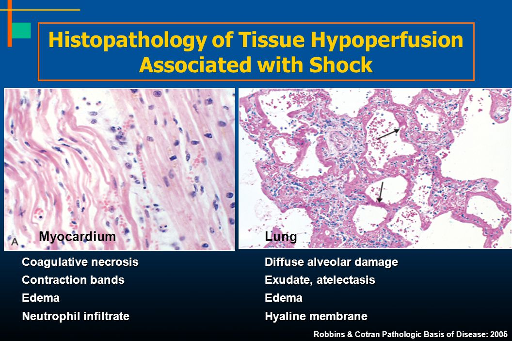 Histopathology of Tissue Hypoperfusion Associated with Shock