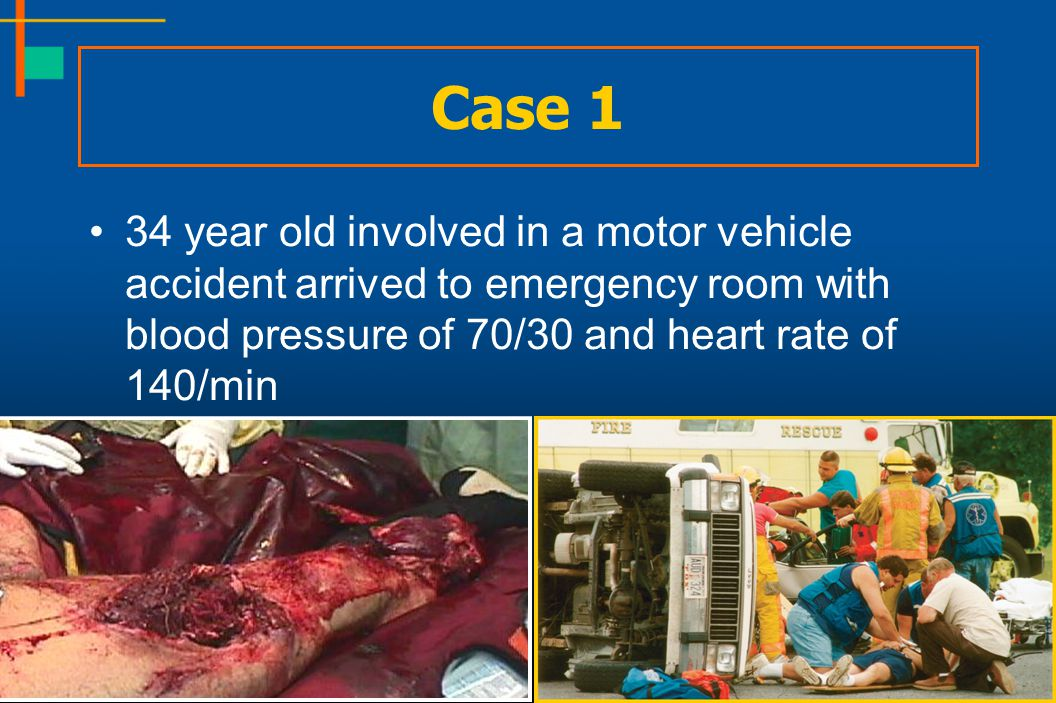 Case 1 34 year old involved in a motor vehicle accident arrived to emergency room with blood pressure of 70/30 and heart rate of 140/min.