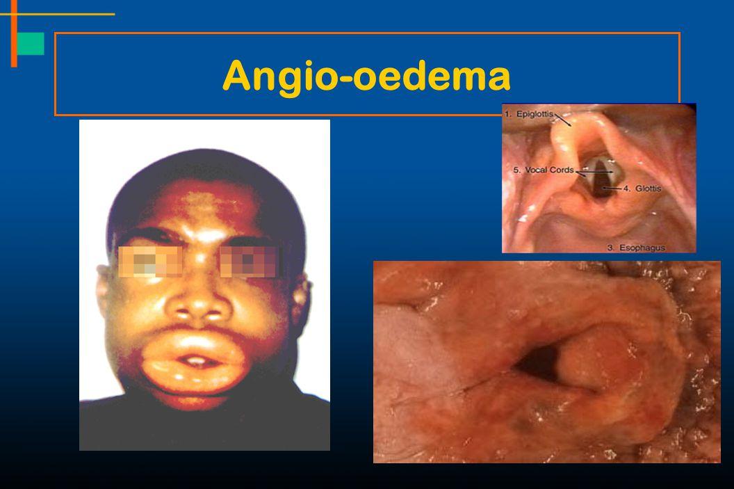 Angio-oedema
