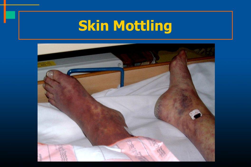 Skin Mottling 59