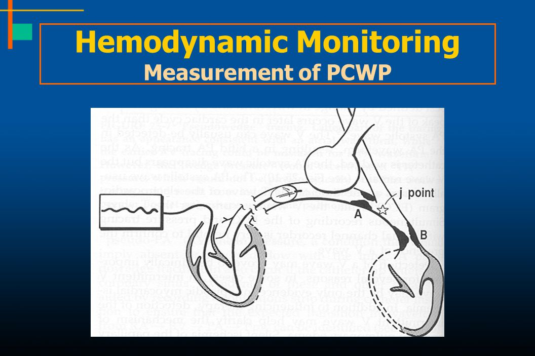 Hemodynamic Monitoring Measurement of PCWP