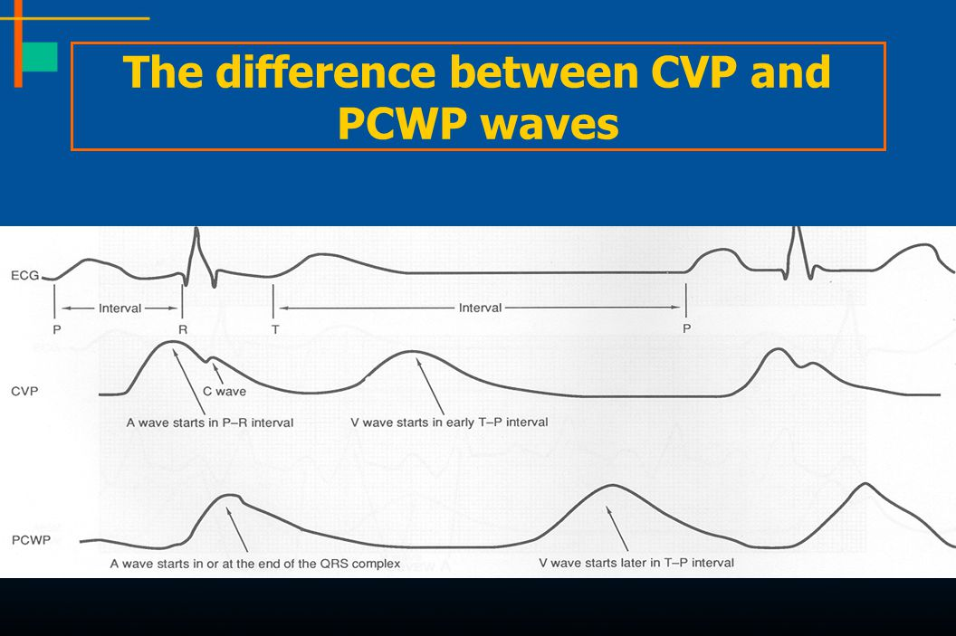 The difference between CVP and PCWP waves