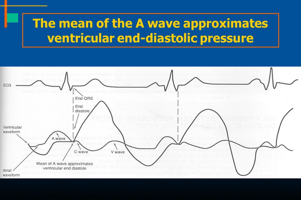 The mean of the A wave approximates ventricular end-diastolic pressure