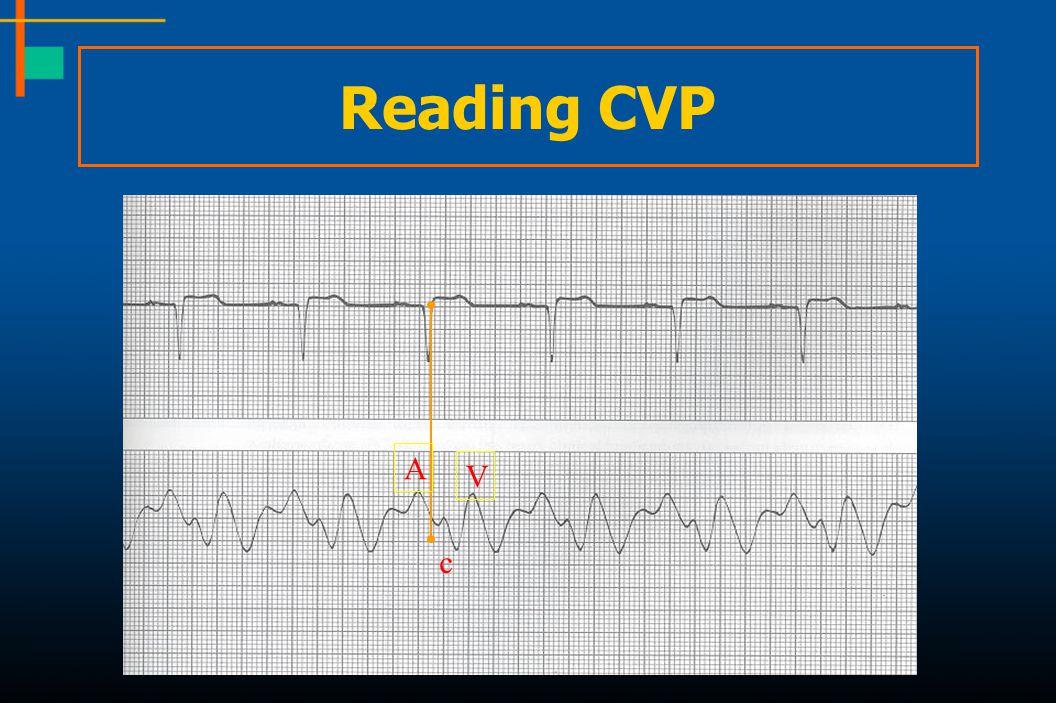 Reading CVP A V c