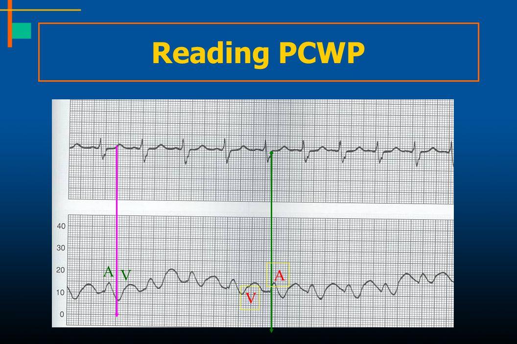 Reading PCWP A V A V
