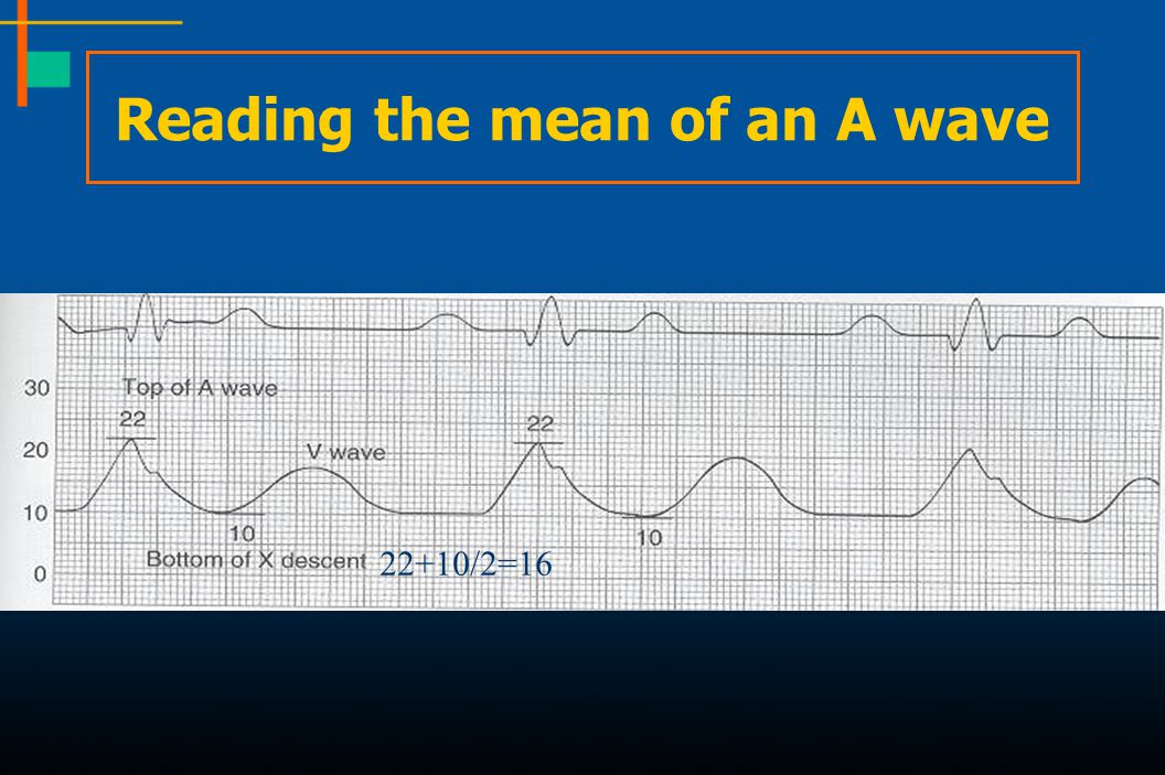 Reading the mean of an A wave
