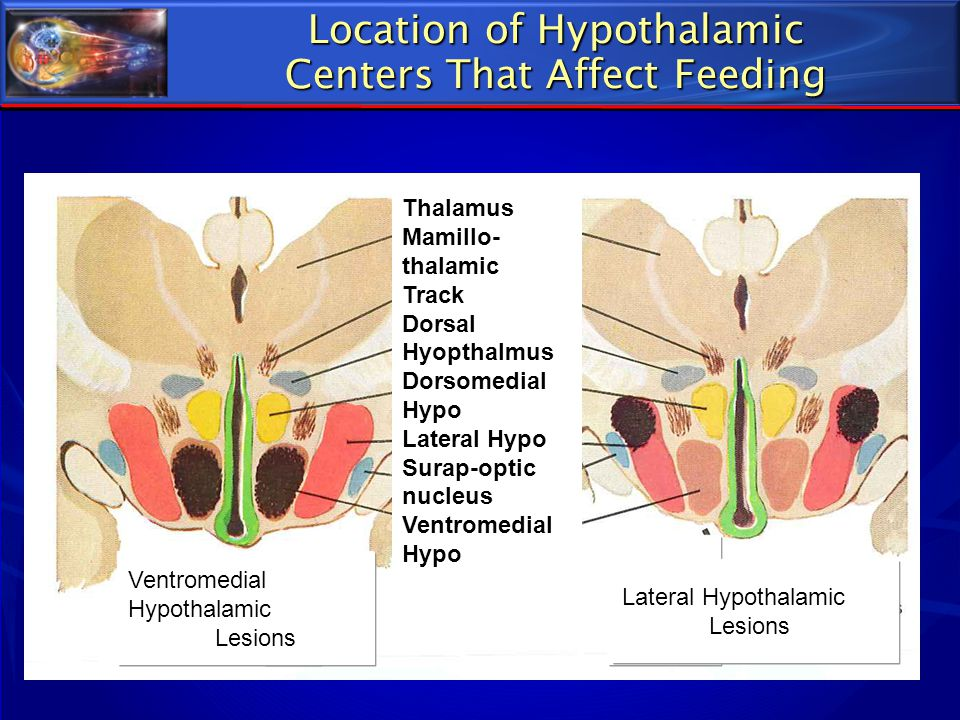 Location of Hypothalamic Centers That Affect Feeding