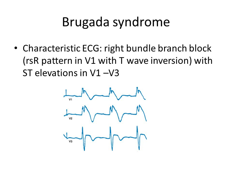Brugada syndrome Characteristic ECG: right bundle branch block (rsR pattern in V1 with T wave inversion) with ST elevations in V1 –V3.