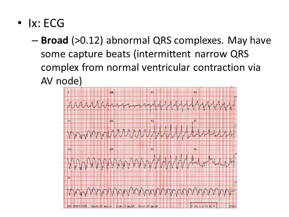 Ix: ECG