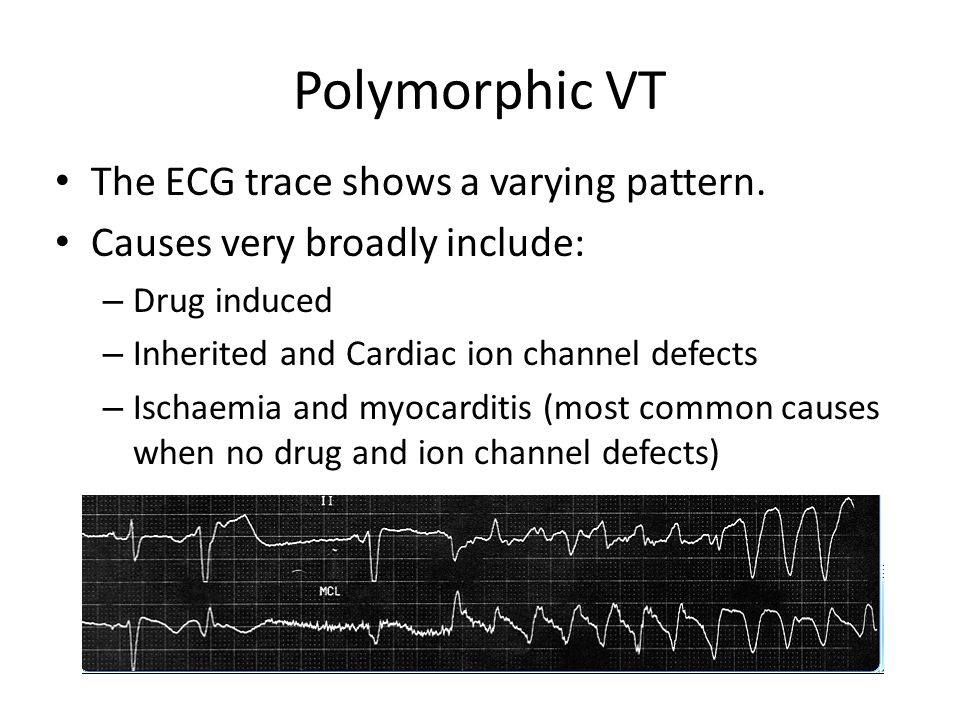 Polymorphic VT The ECG trace shows a varying pattern.