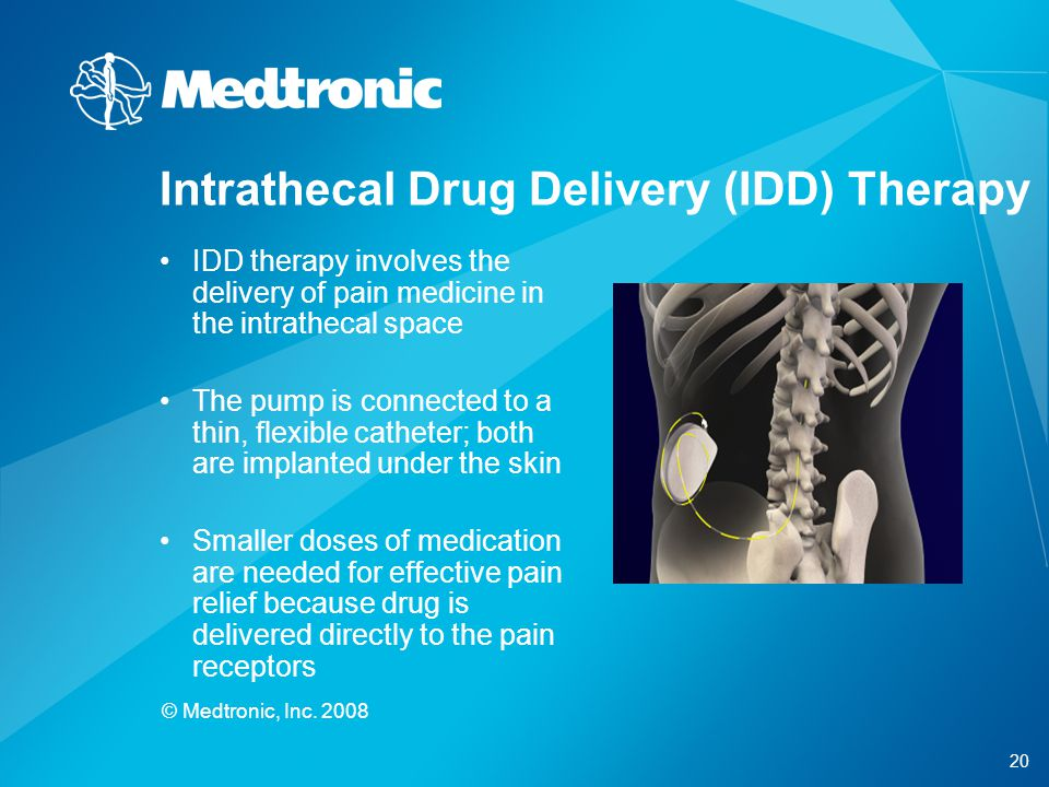 Intrathecal Drug Delivery (IDD) Therapy