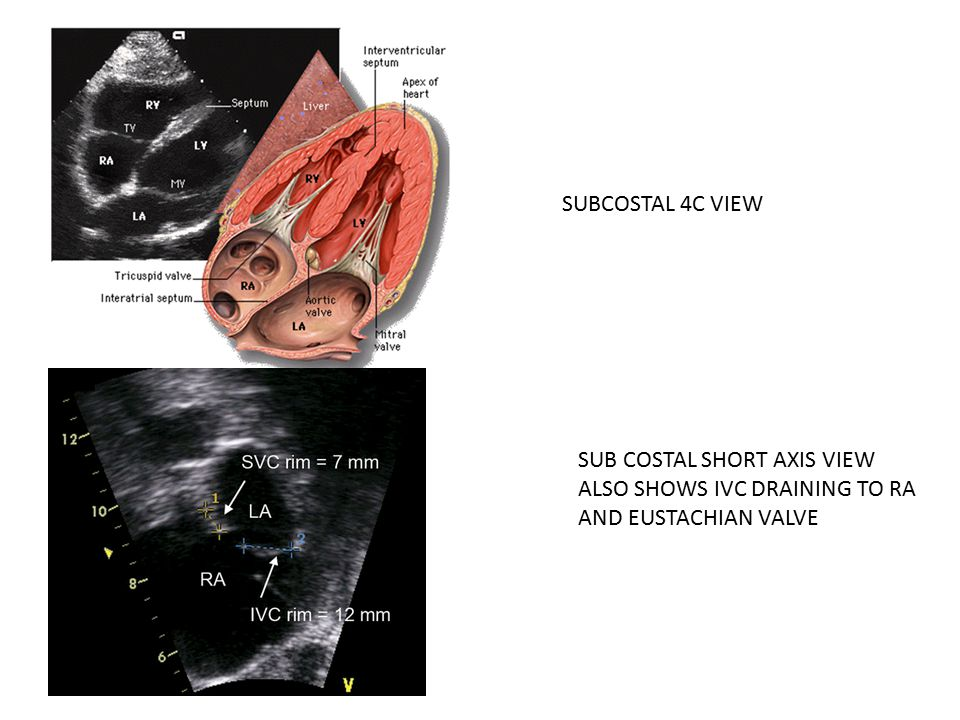 SUBCOSTAL 4C VIEW SUB COSTAL SHORT AXIS VIEW ALSO SHOWS IVC DRAINING TO RA AND EUSTACHIAN VALVE