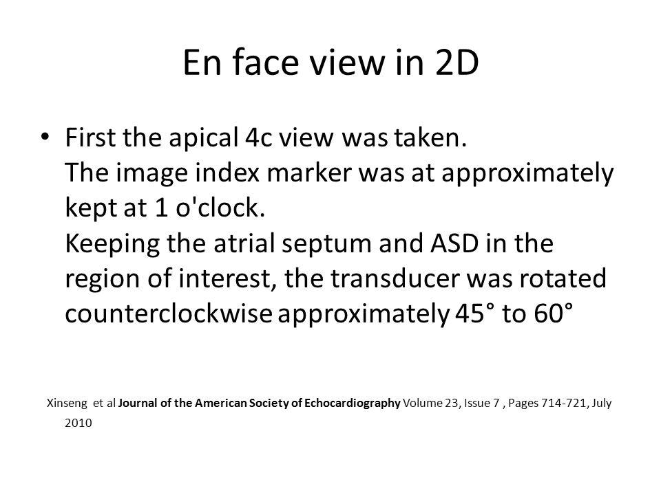 En face view in 2D