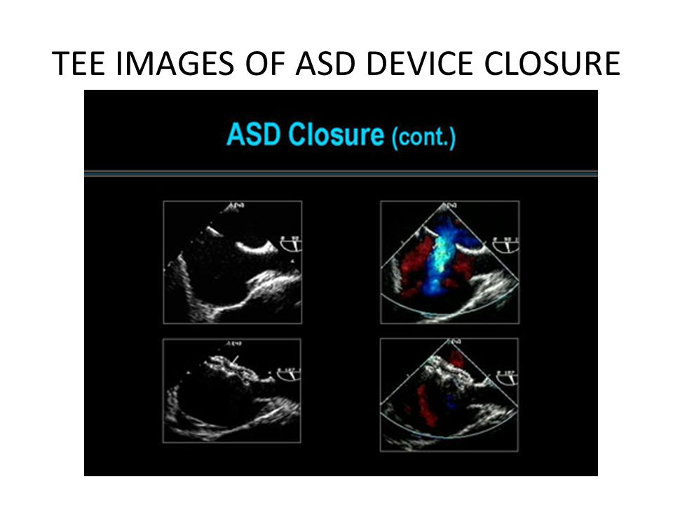 TEE IMAGES OF ASD DEVICE CLOSURE