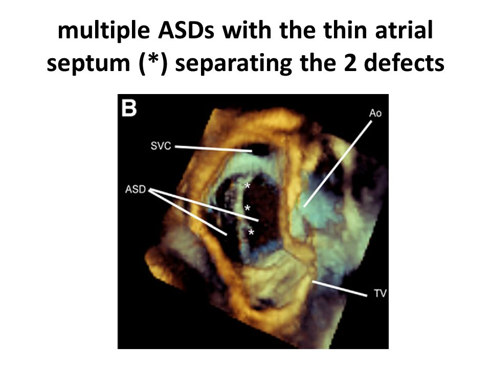 multiple ASDs with the thin atrial septum (*) separating the 2 defects