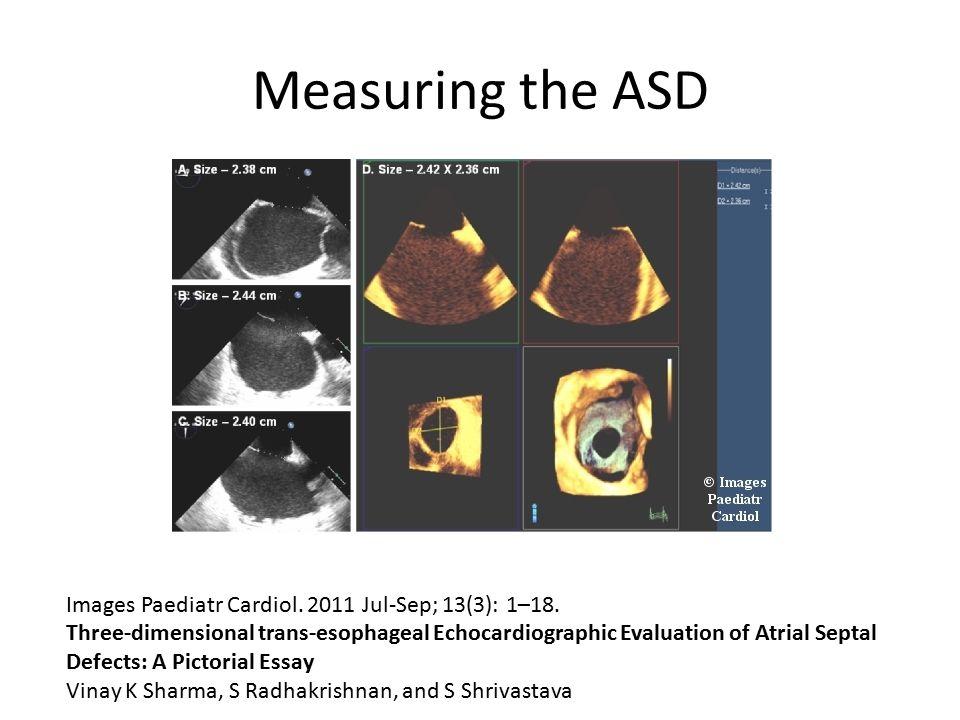 Measuring the ASD Images Paediatr Cardiol. 2011 Jul-Sep; 13(3): 1–18.