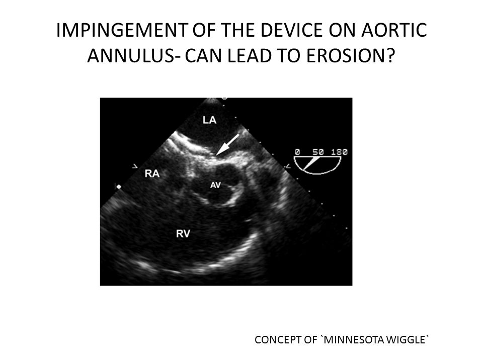 IMPINGEMENT OF THE DEVICE ON AORTIC ANNULUS- CAN LEAD TO EROSION