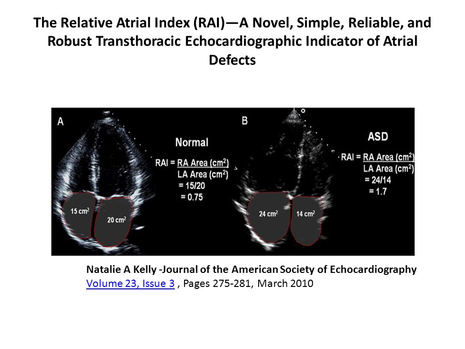 The Relative Atrial Index (RAI)—A Novel, Simple, Reliable, and Robust Transthoracic Echocardiographic Indicator of Atrial Defects