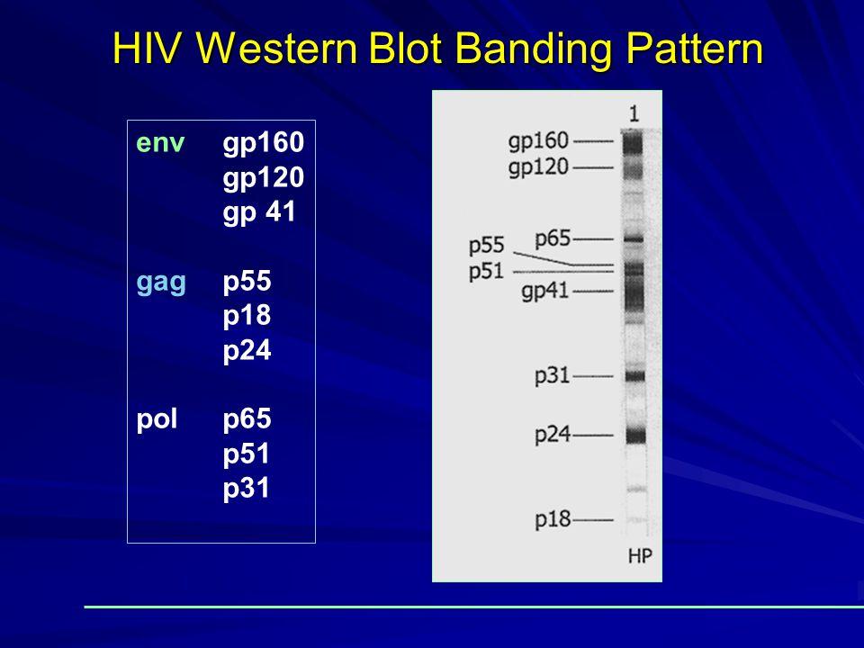 HIV Western Blot Banding Pattern