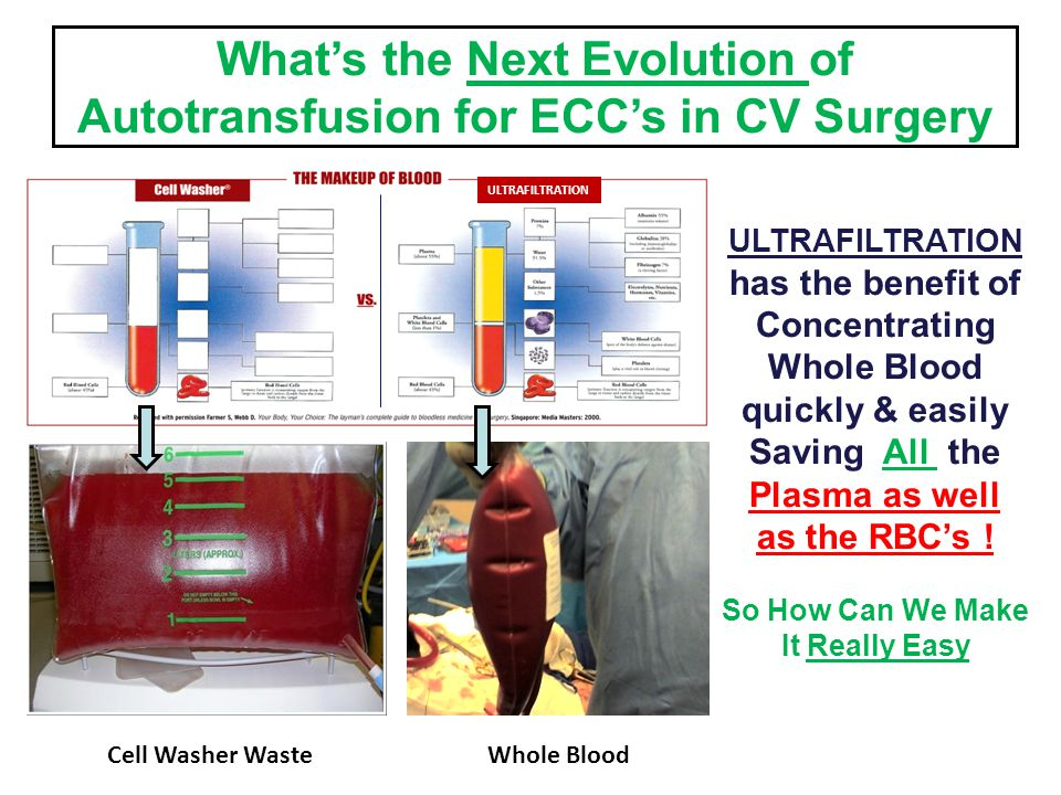 What's the Next Evolution of Autotransfusion for ECC's in CV Surgery