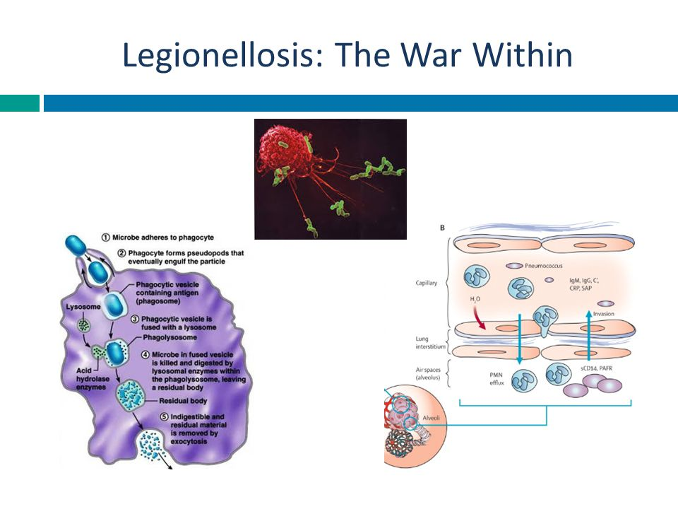 Legionellosis: The War Within