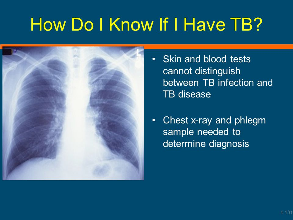 How Do I Know If I Have TB Skin and blood tests cannot distinguish between TB infection and TB disease.