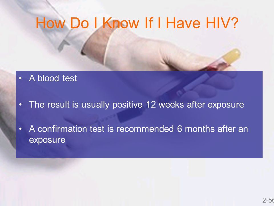 How Do I Know If I Have HIV