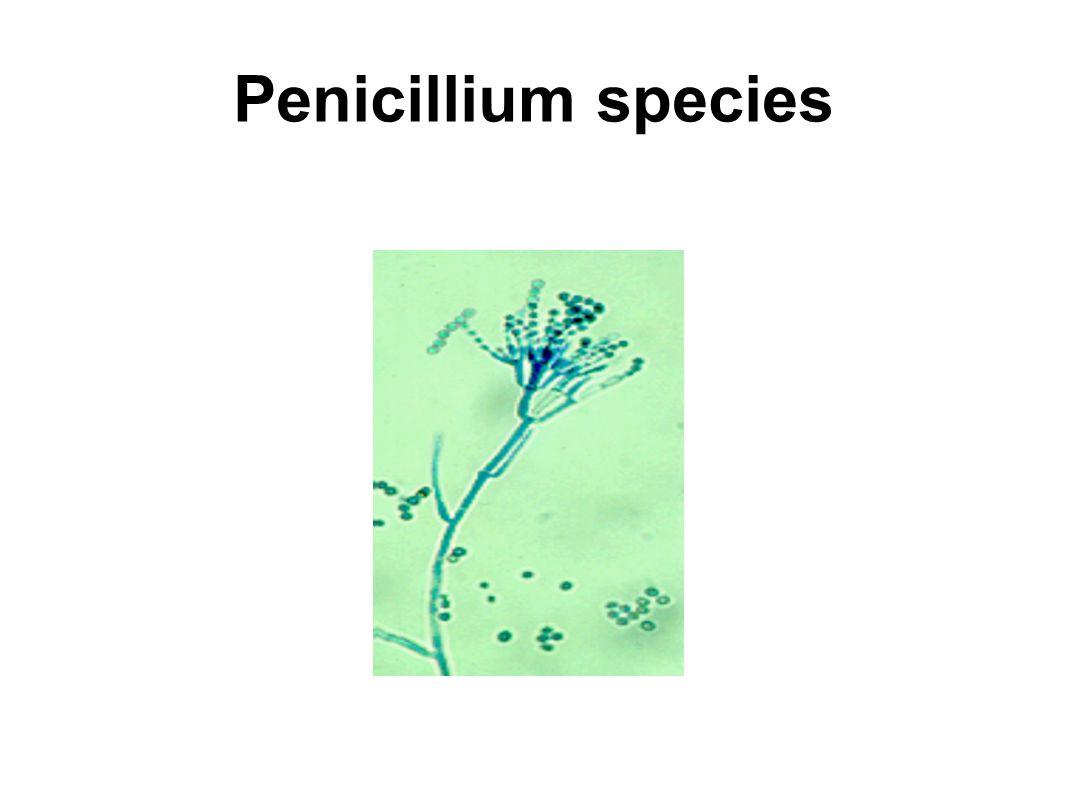 Penicillium species Ascomycetes example: Penicillium conidiospores; asexual stage