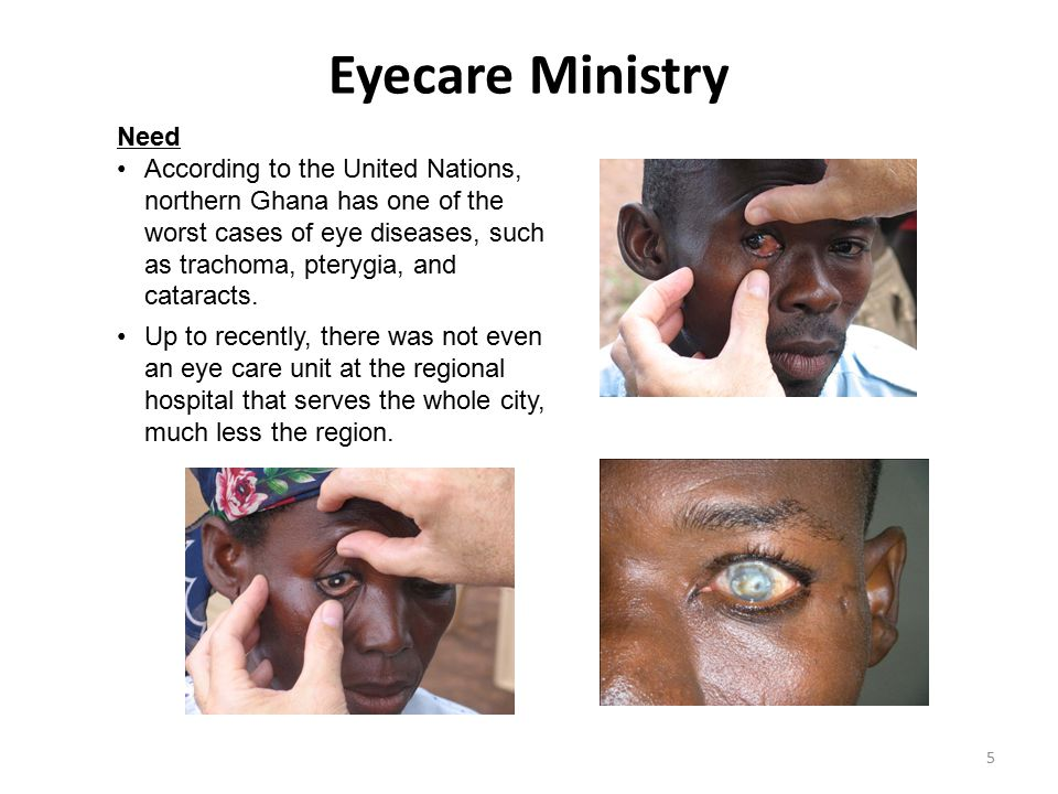 Eyecare Ministry Need.