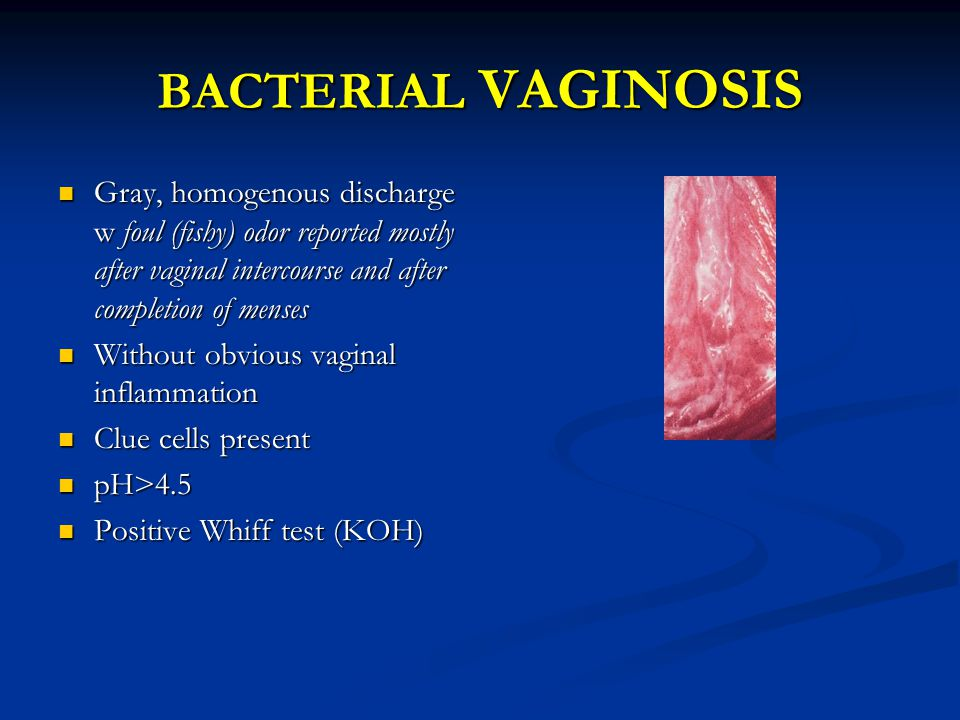 BACTERIAL VAGINOSIS Gray, homogenous discharge w foul (fishy) odor reported mostly after vaginal intercourse and after completion of menses.